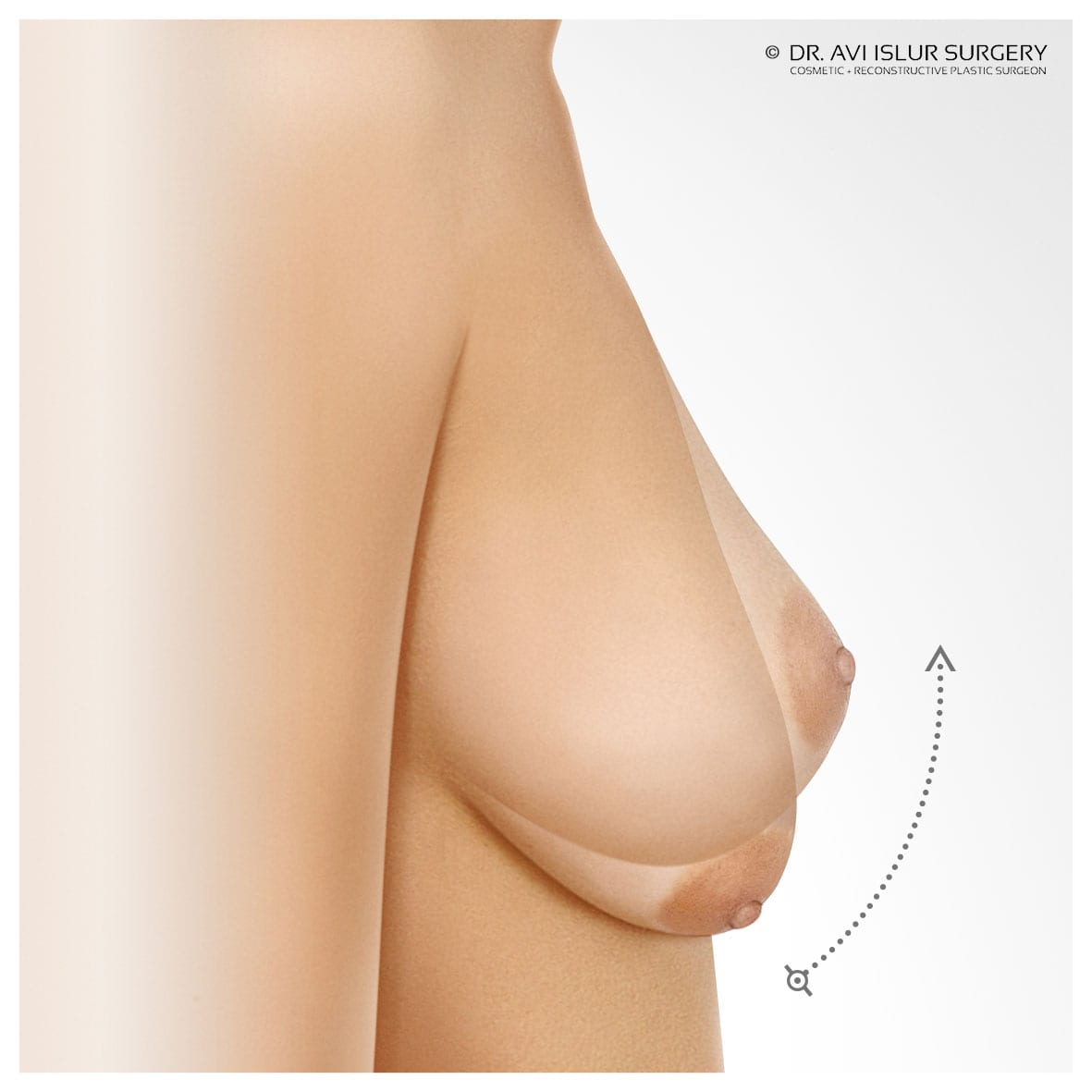Breast Lift raising the position of the breast