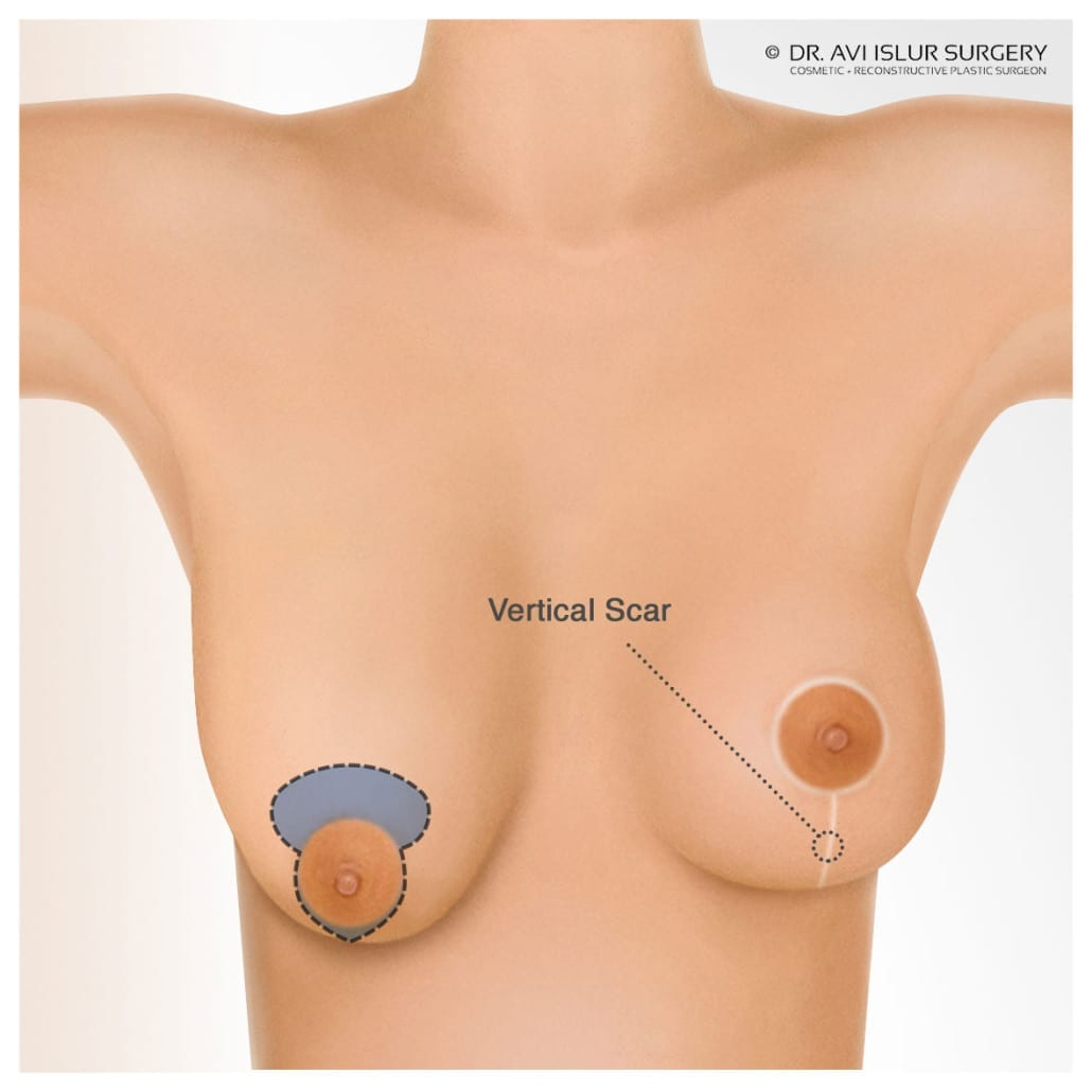 Final incision lines for Breast Lift Surgery, around the nipple and down towards the bottom of the breast
