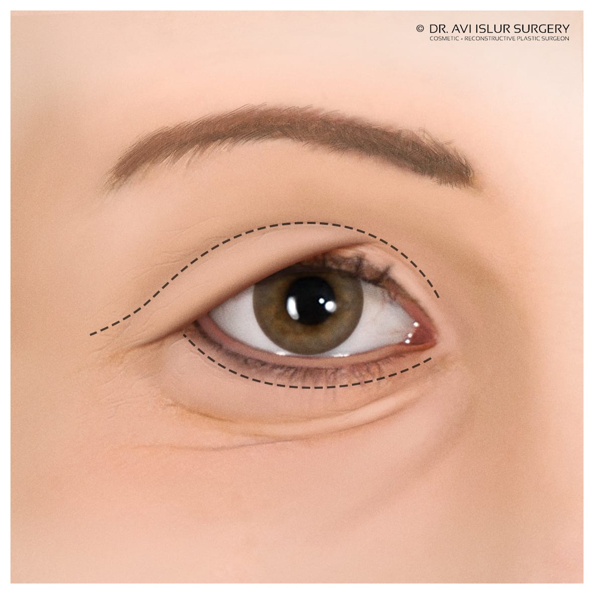 Illustration of markings for eyelid surgery