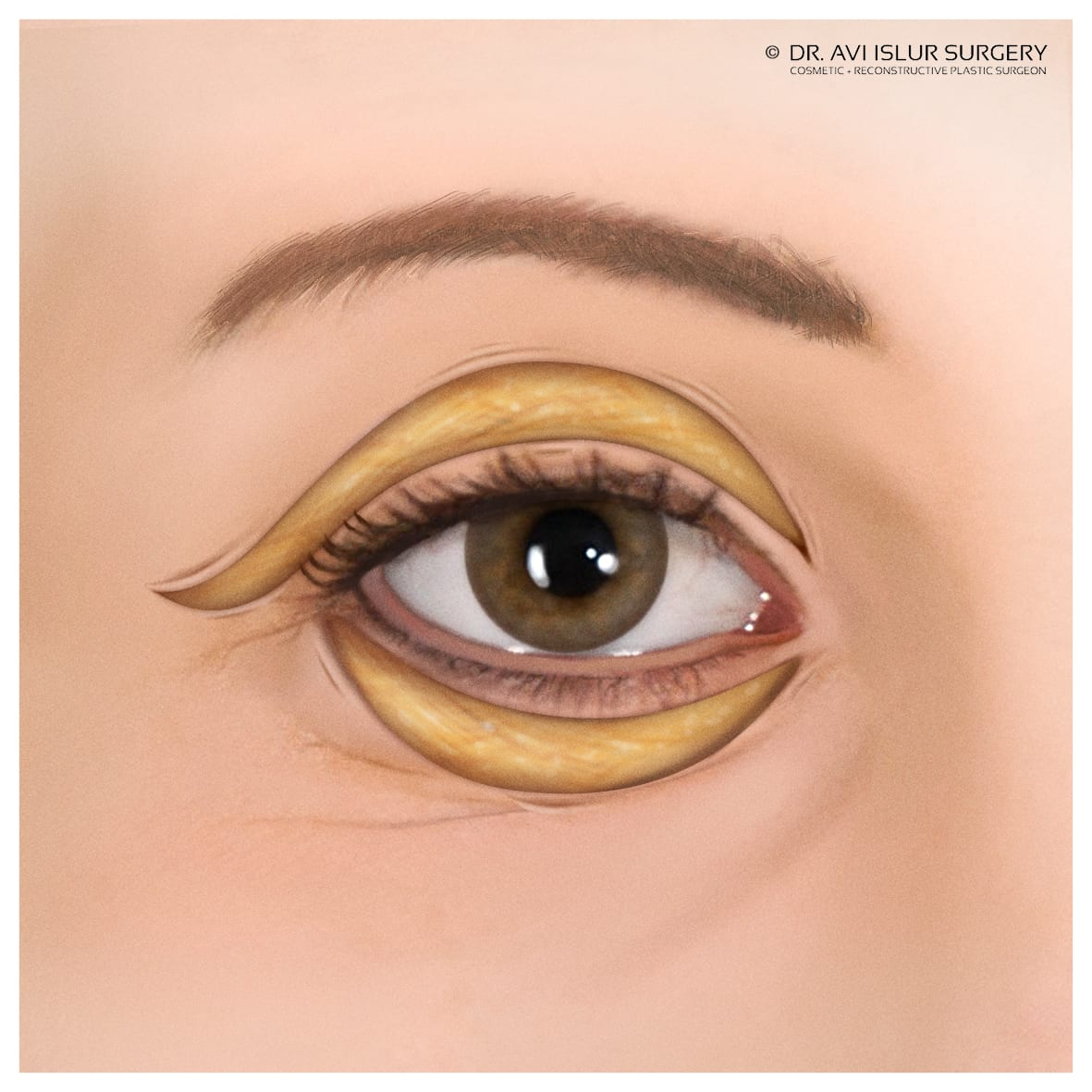 eyelid surgery fat removal illustration
