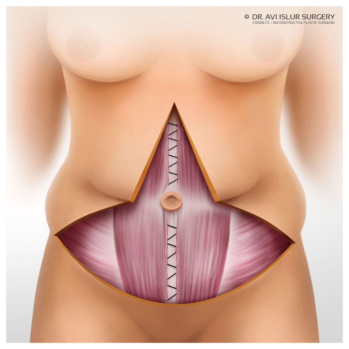 fleur de lys tummy tuck sutures