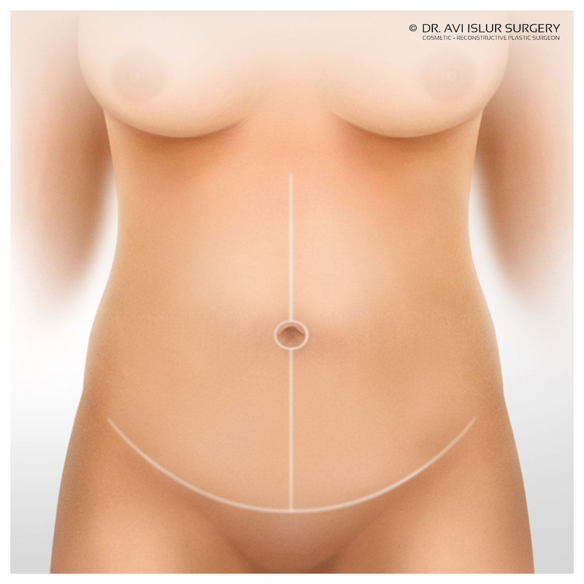 Incision lines of a Fleur De Lys Tummy Tuck Surgery