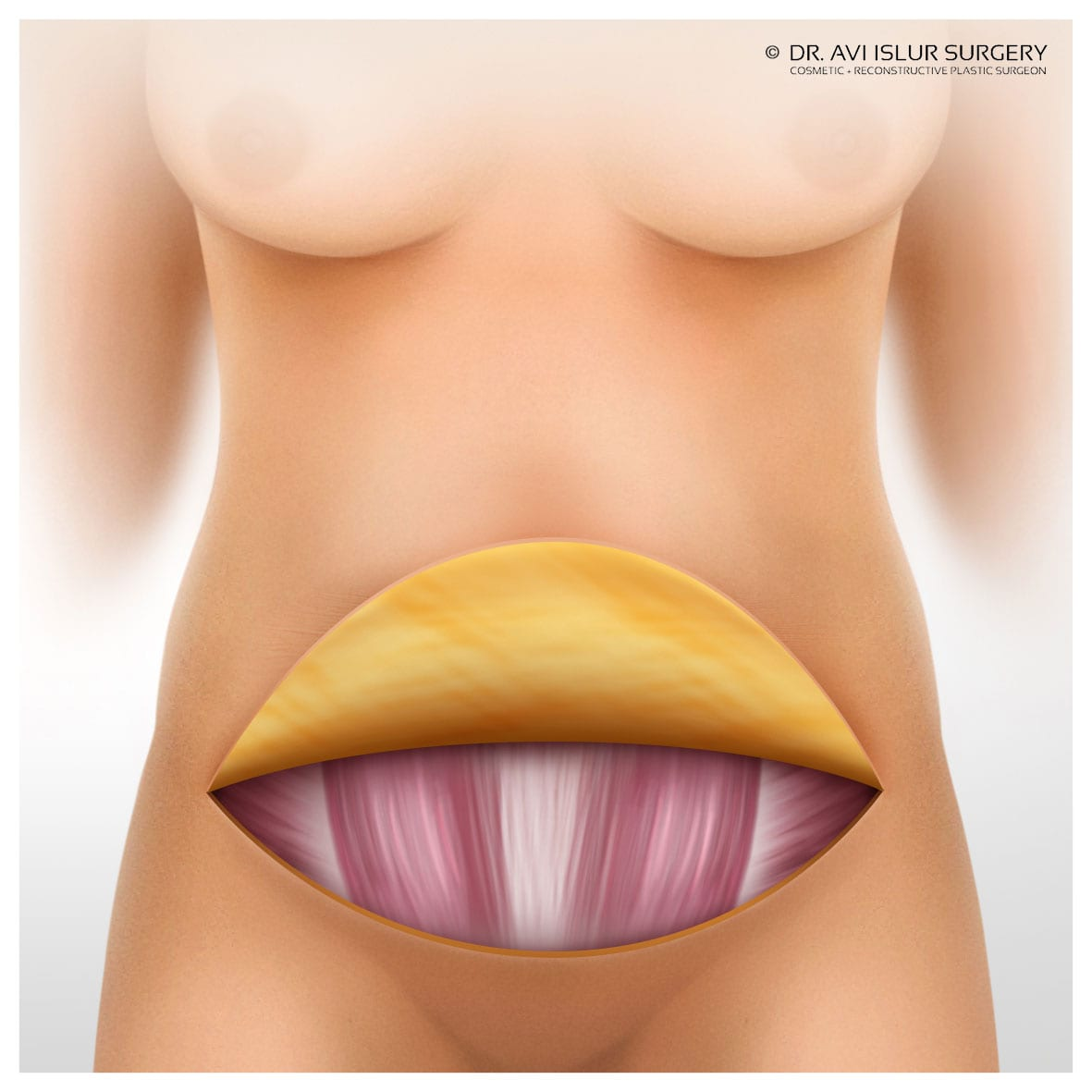 lifting skin and fat full tummy tuck illustration