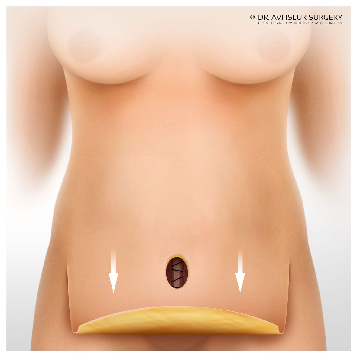 pulling skin and fat down full tummy tuck illustration