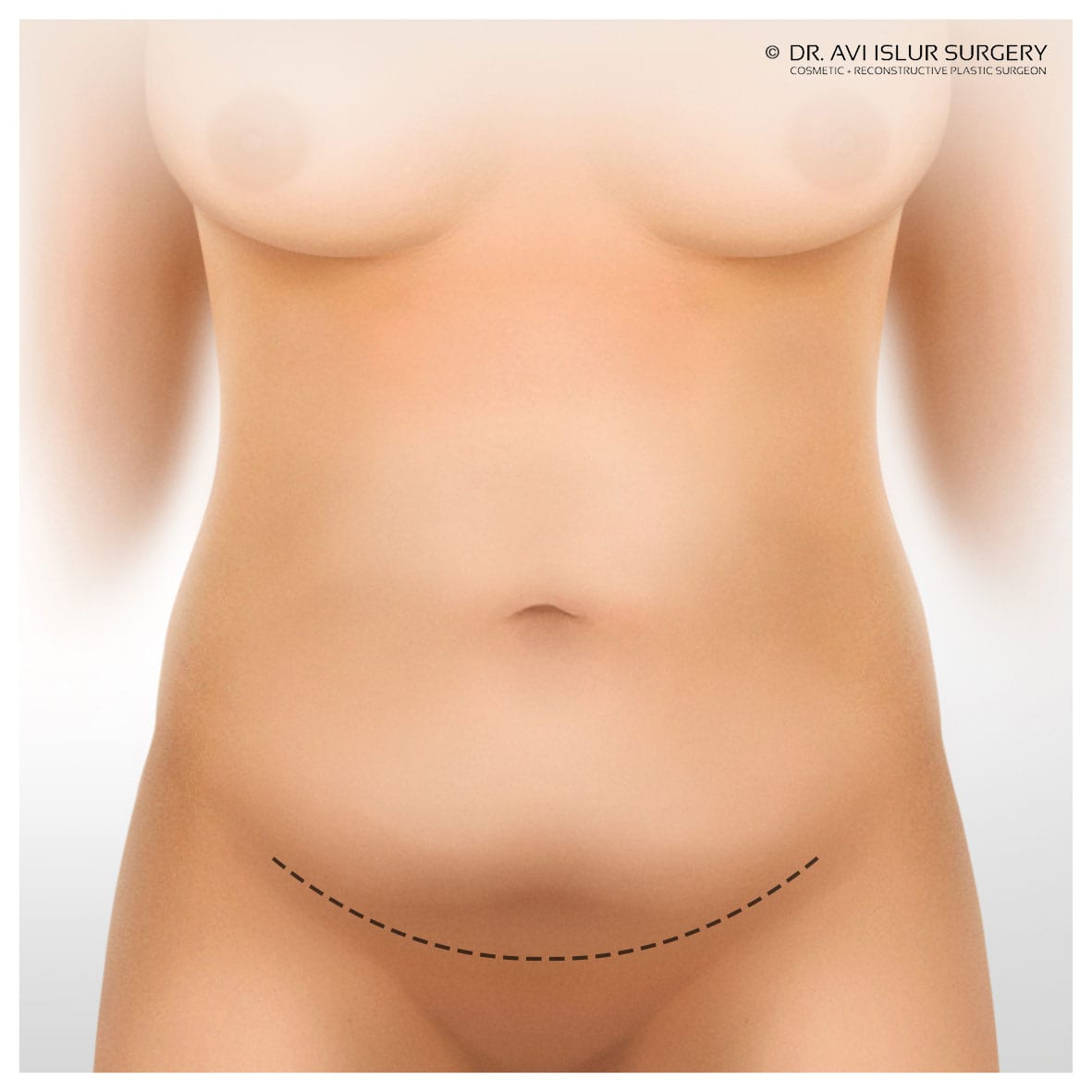 Mini Tummy tuck incision lines