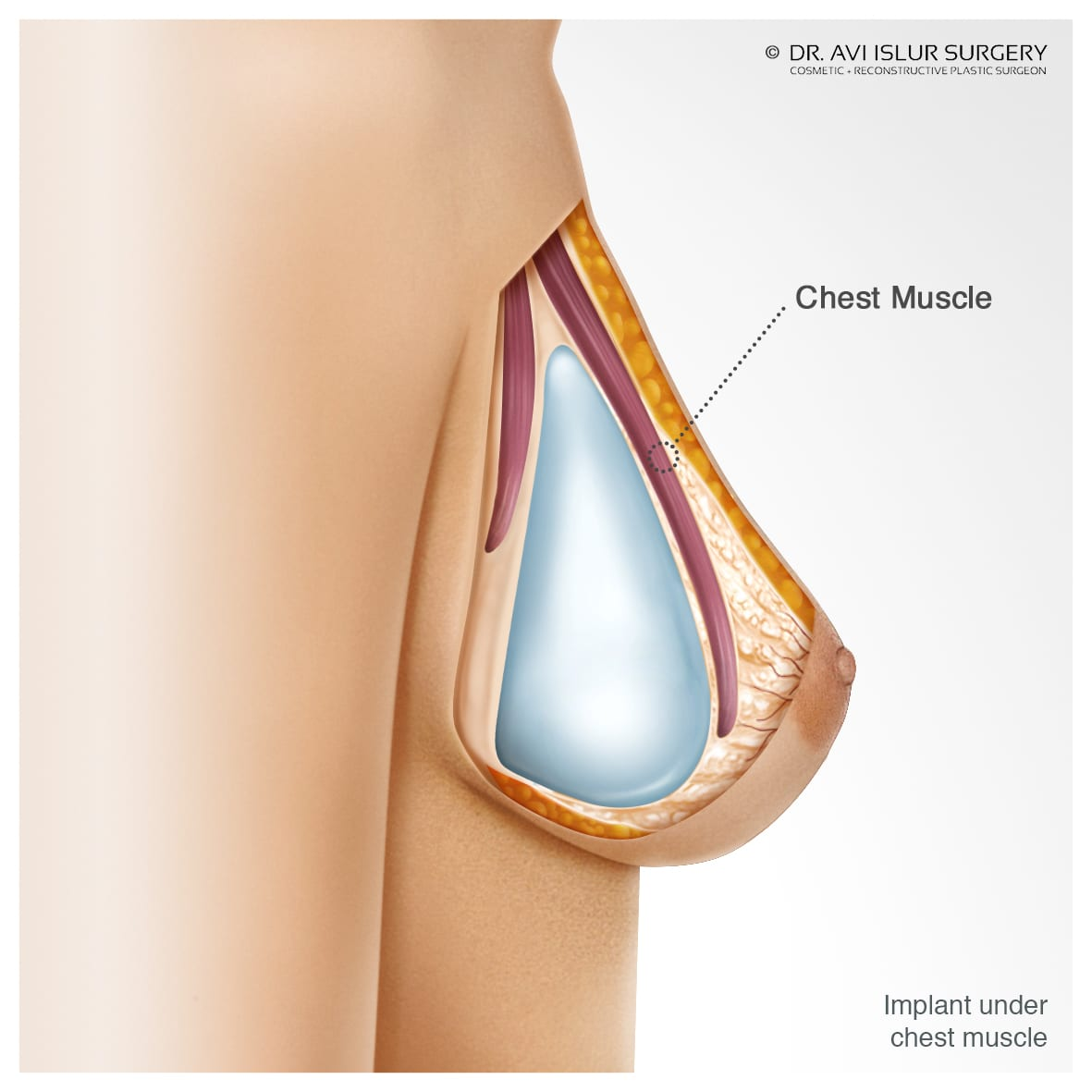 Illustration of the breast implant under chest muscle