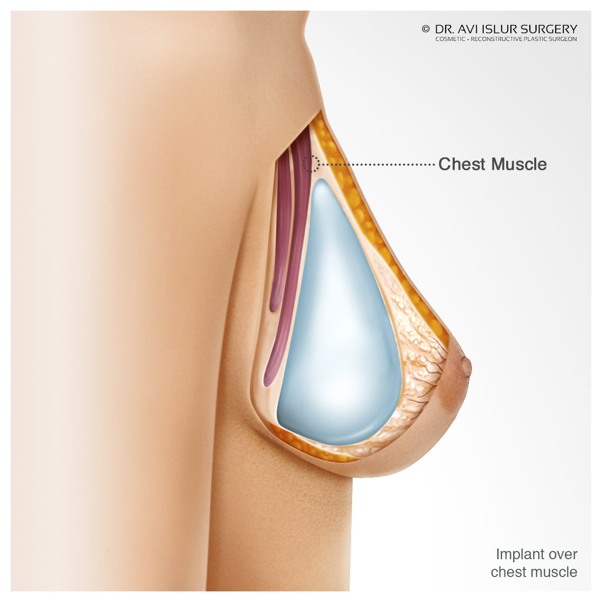 Illustration for Breast Implant Over the Chest Muscle
