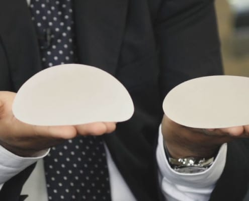 Dr. Islur holding two different types of breast implants