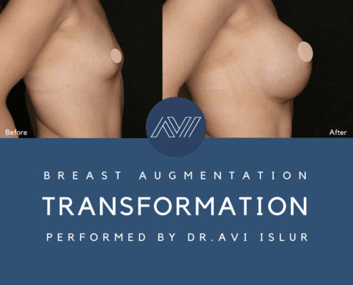 Profile view of breast implant surgery