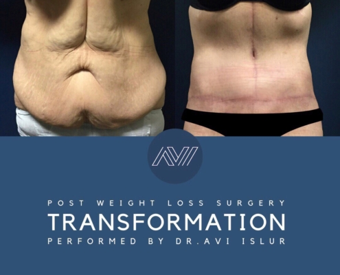 Before and After Tummy Tuck Surgery on 60 year old female patient