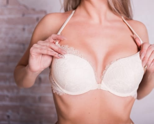 Blonde woman wearing bra after Breast Augmentation in Winnipeg, MB Dr. Avi Islur