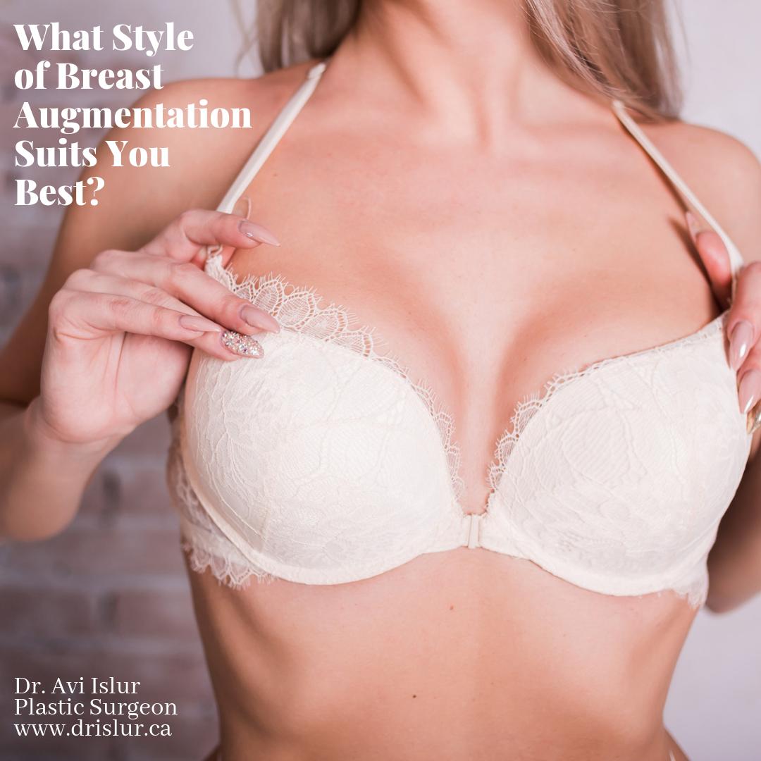 Woman in bra after breast augmentation surgery