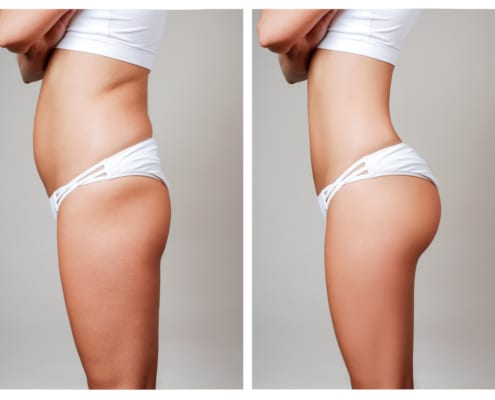 Female body before and after liposuction and tummy tuck surgery. Caucasian woman wearing white underwear and white bra
